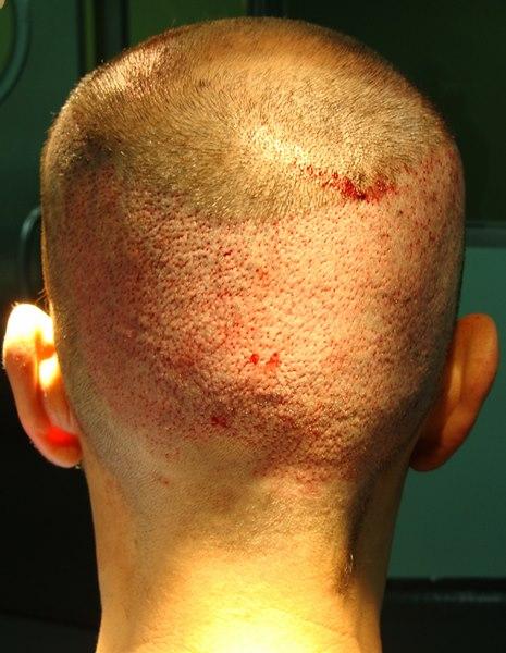 tecnica-FUE-Clinicas-Ceta-cirugia-1