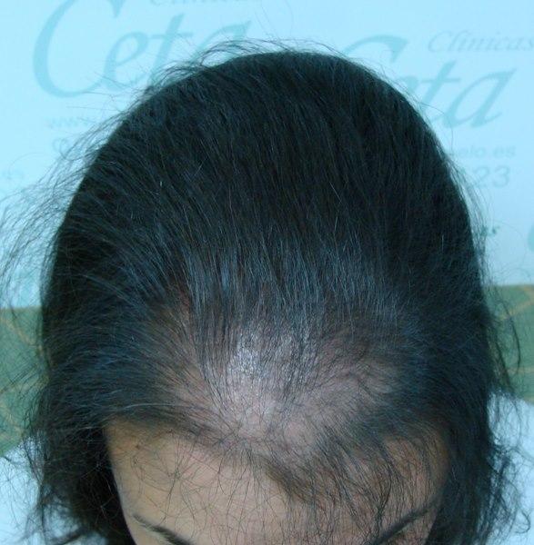 tecnica-FUE-Clinicas-Ceta-1mes-1