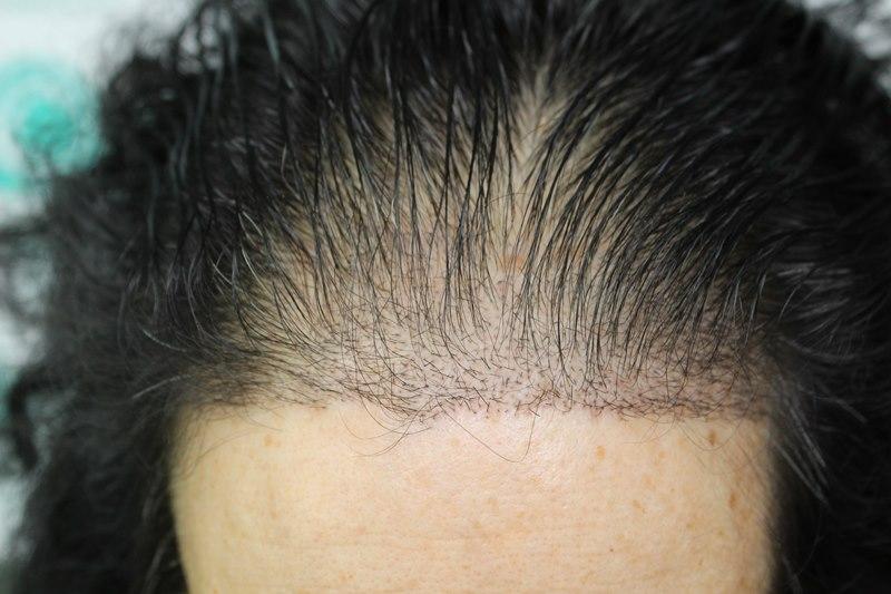 tecnica-FUE-Clinicas-Ceta-1mes-3