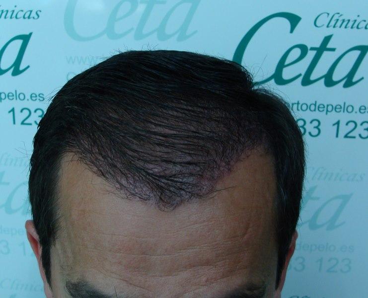 tecnica-FUE-Clinicas-Ceta-4meses-1